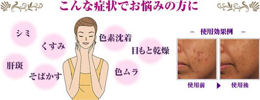 こんな症状でお悩みの方に!シミ、くすみ、そばかす、色素沈着、目もと乾燥、色ムラ、肝斑